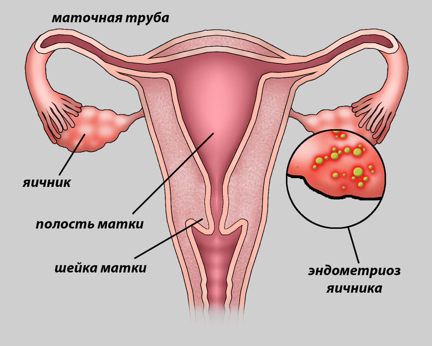 как выглядит эндометриоз яичников