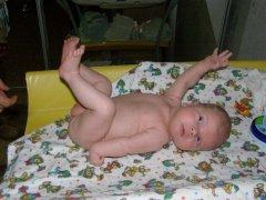 Акушерский паралич: формы, диагностика, методы лечения