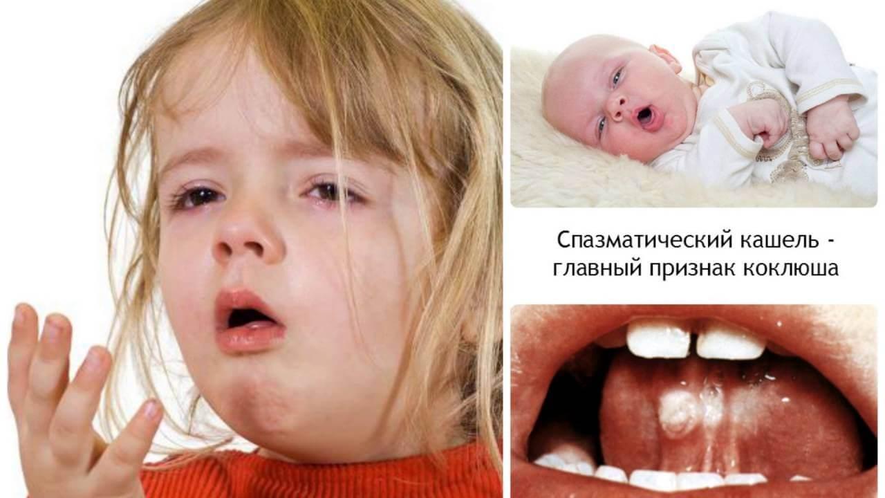 Коклюш – инфекционное заразное заболевание