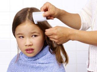 Ребенок, у которого обнаружены вши