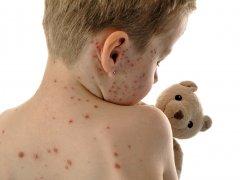 Сколько длится инкубационный период лишая, способы лечения у детей