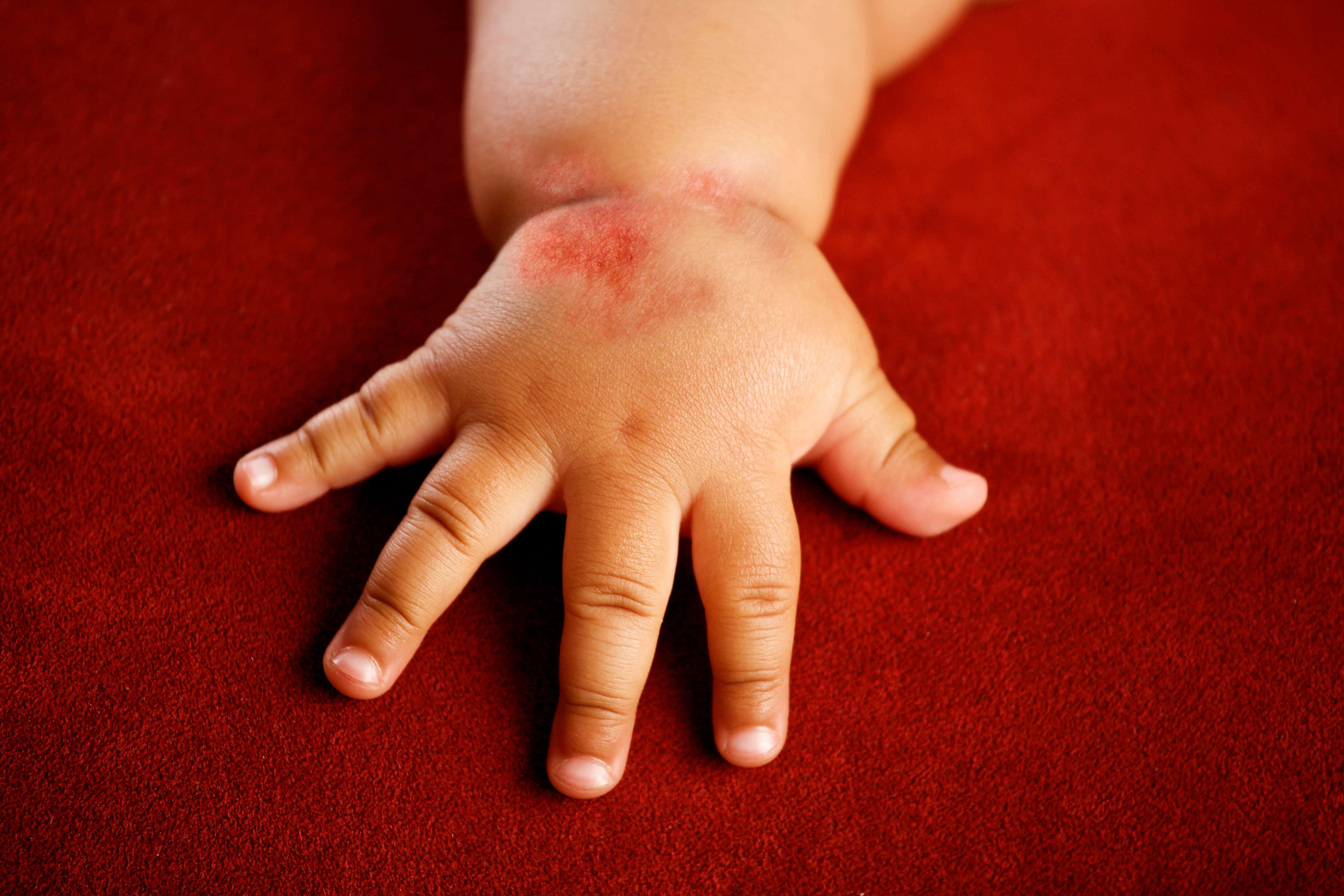 Как лечить аллергический дерматит на руках у ребенка?