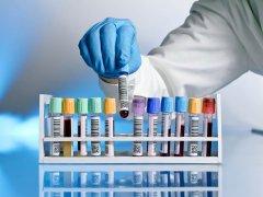 Что такое WBC в анализе крови и что говорит о здоровье человека?